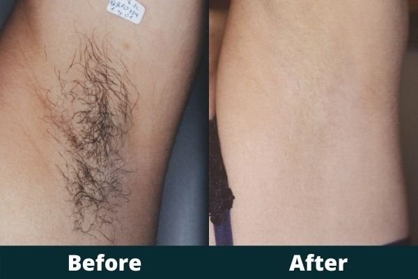 Atlanta Laser Hair Removal Before and After