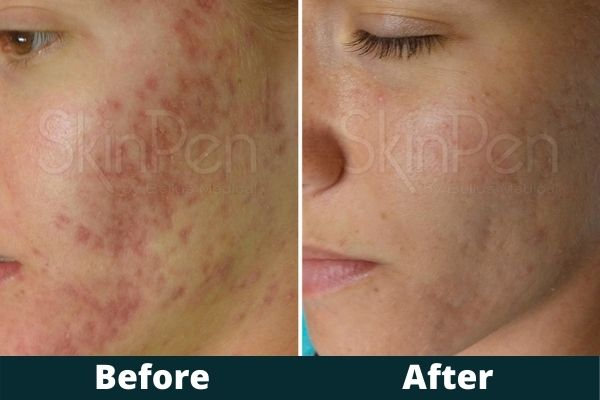 Atlanta Microneedling Before and After