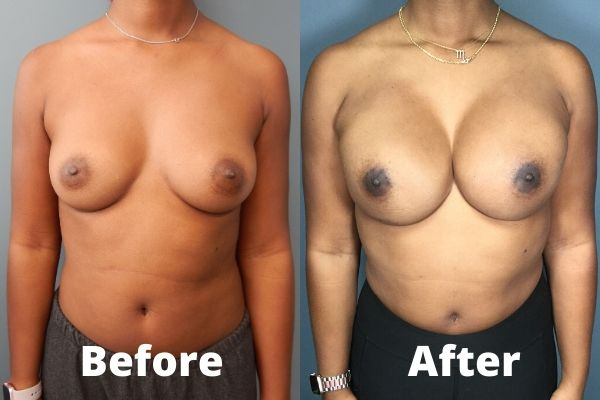Breast Reconstruction Atlanta - 1