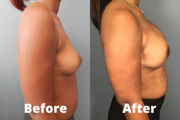 Breast Reconstruction Atlanta - 1a