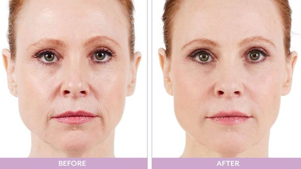 Juvederm Atlanta Before and After
