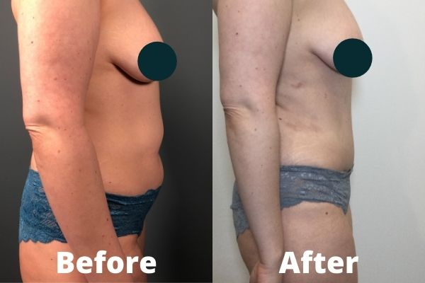 Atlanta Tummy Tuck Before and After 2a